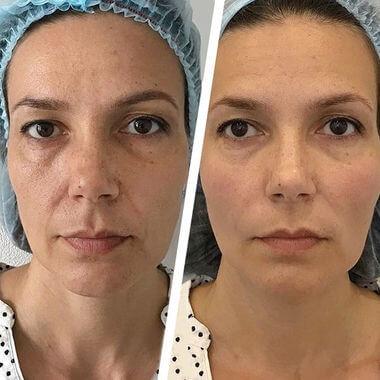 Биоревитализация кожи — способ омоложения лазером