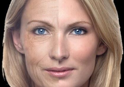 Морщины на лице: как убрать морщины на лице