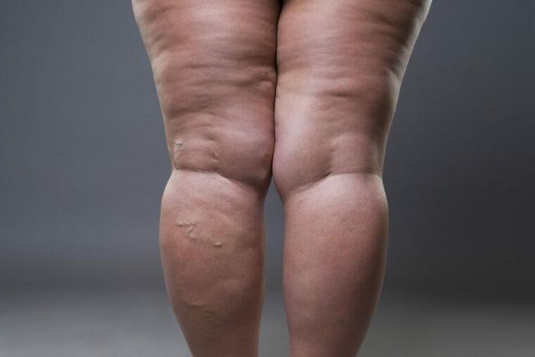 Лучшие методы избавления целлюлита на ногах