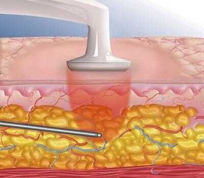 Радиоволновая липосакция – современный метод избавления от жировых отложений