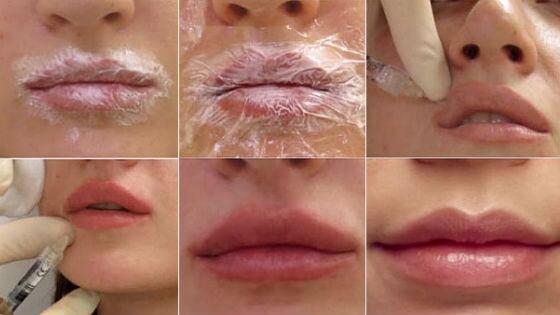 Увеличение губ — контурная пластика губ