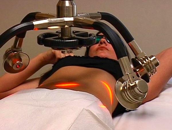 лазерная липосакция в спб