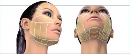 ритидэктомия подтяжка лица