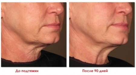 подтяжка лица ритидэктомия