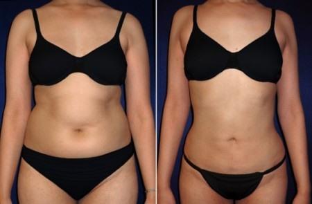 фото до и после липосакции живота
