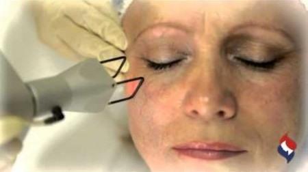 подтяжка лица без операции лазерная